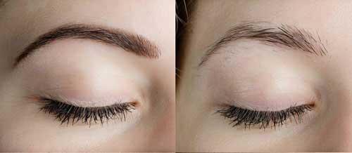 Augenbrauen Wachstum Wachsen Lassen Und Anregen